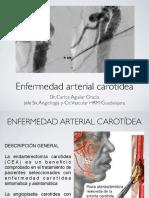 Enfermedad carotídea.pdf