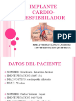 implante cardio-desfibrilador