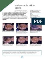 Adhesión e Ionómeros de Vidrio en Odontopediatría