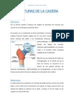 Fracturas de La Cadera