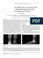 An Eleven-Year Follow-up of a Custom Talar Prosthesis After Open Talar Extrusion in an Adolescent Patient