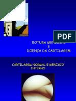 Rotura Meniscal e Doenca Da Cartilagem