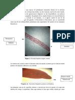 Informe de Platermintos.
