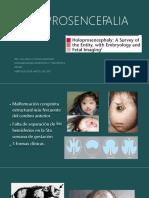 holoprosencefalia-170807025509