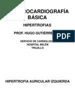Ekg Basico. Hipertrofias. Dr Gutierrez Zerpa