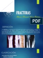 1 Fracturas