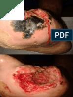 anatomia y fisiologia del pie.pdf