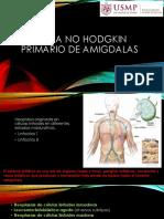 Linfoma No Hodgkin Primario de Amigdalas