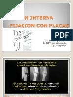 Fijacinconplacas 110705153947 Phpapp02 (1)