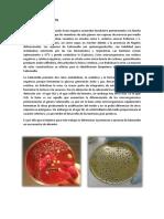 Reconocimiento de salmonella en alimentos