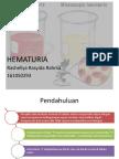 Referat Hematuria