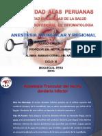 Anestesia Troncular