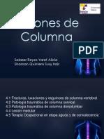 Lesiones de Columna