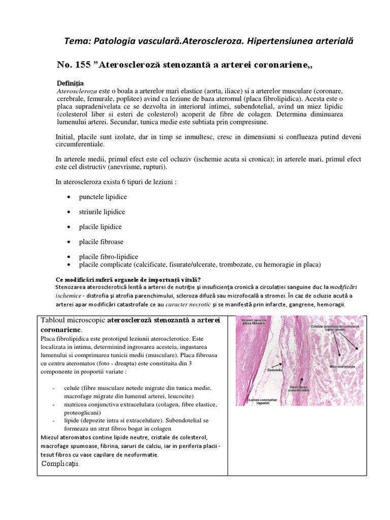 prelegere difuză a bolii țesutului conjunctiv)