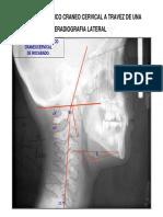 3º Articulo Análisis Biomecánico Cráneo Cervical (Rev. Chil. de Ortodoncia (1984) Completo - 2010