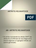 Artritis Reumatoide Con Criterios Nuevos