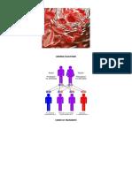 Anemia Falcifome