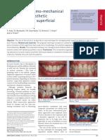 Esthetic dentistry sj.bdj.2009.116