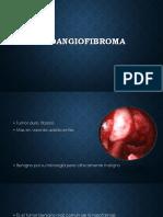 Na So Angio Fibroma