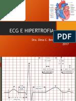 ECG E HIPERTROFIA.pptx