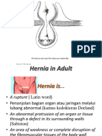 Hernia-Adult.pptx