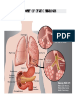 Anatomy of Cystic Fibrosis