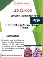 Caso Leucemia