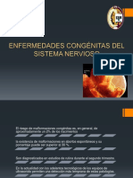 Hidrocefalia-2