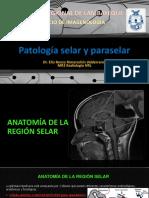 RMN - Patología Selar y Paraselar