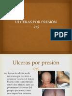 Ulceras p..
