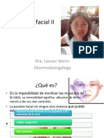 Parálisis Facial II2