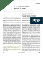 Fisiopatologia del ateroma