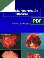 Citología por punción tiroidea. Autor