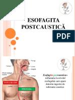 esofagita postcaustica.pptx