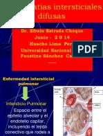 Neumopatías intersticiales Difusas
