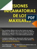264305564-Lesiones-Inflamatorias-de-Los-Maxilares.pdf