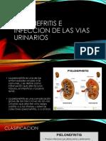 Pielonefritis e Infeccion de Las Vias Urinarios