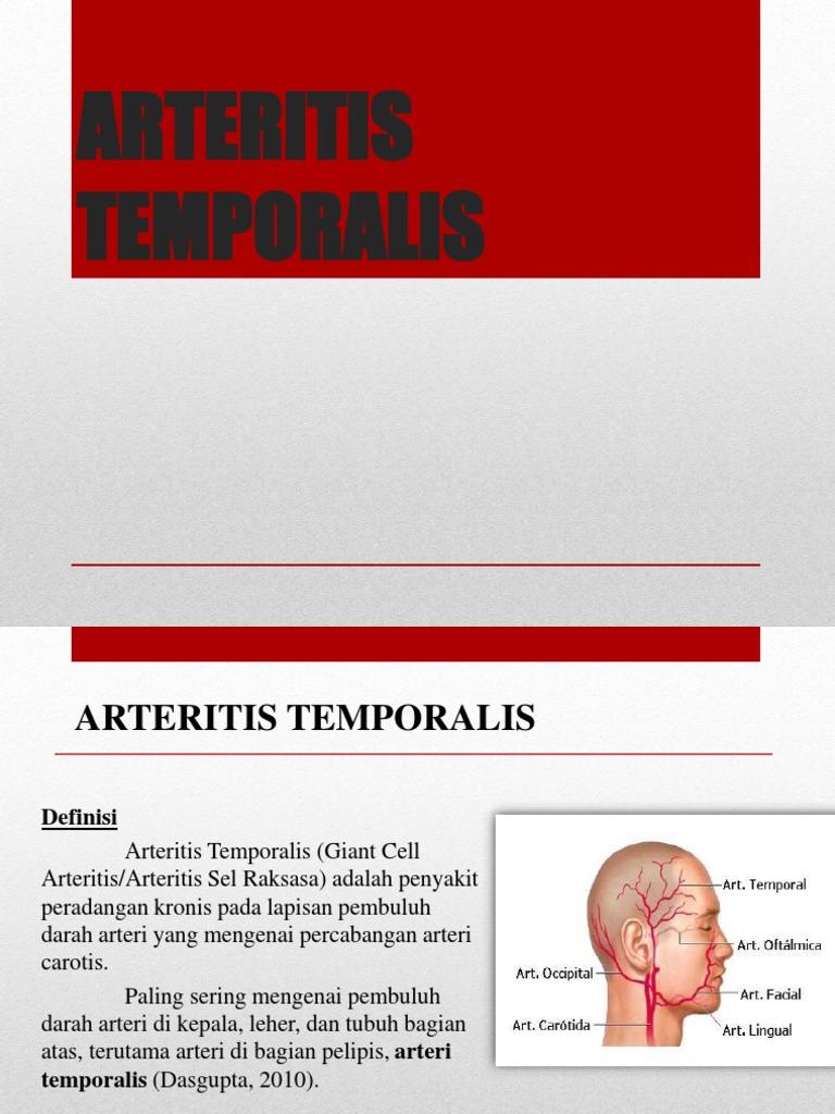 cum să tratezi un medicament pentru articulația genunchiului tipuri de boli ale articulației șoldului