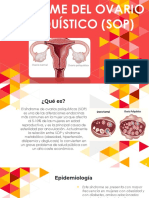 Síndrome Del Ovario Poliquístico (SOP)