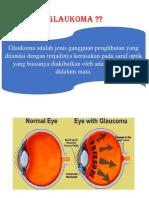 pengertian glaukoma.docx