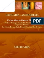 Urticaria - Angioedema