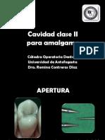 Guia Operatoria dental I Cavidad Clase II.