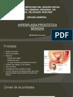 Hiperplasia Prostática Benigna-JML