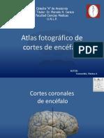 Cortes de Encefalo