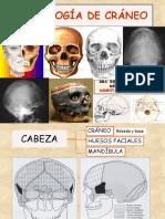 1. Radiologia Craneo Normal