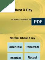 Chest Xray