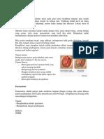 Perbedaan Miringotomi Dan Paracentesis, Kuadran MT - Mutiara Adisti