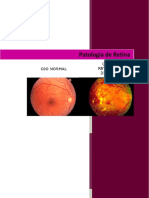 Rpatologia de Retina