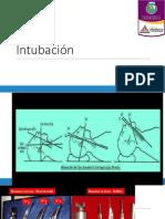 SDRA e intubación.pptx
