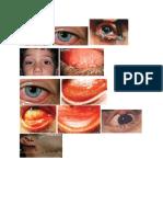 Gambar Sign Konjungtivitis.docx